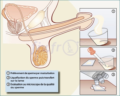 1-spermogramme