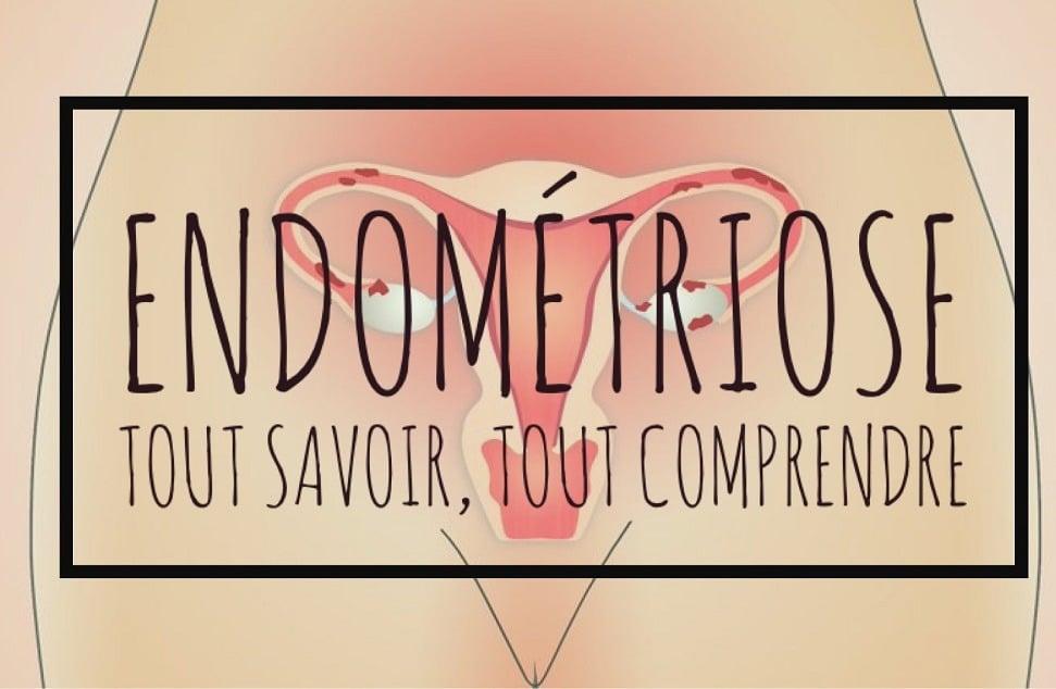 Endometriose • Fiv.fr